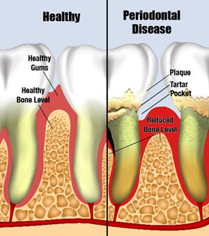 Healthy Gums vs Periodontal Disease